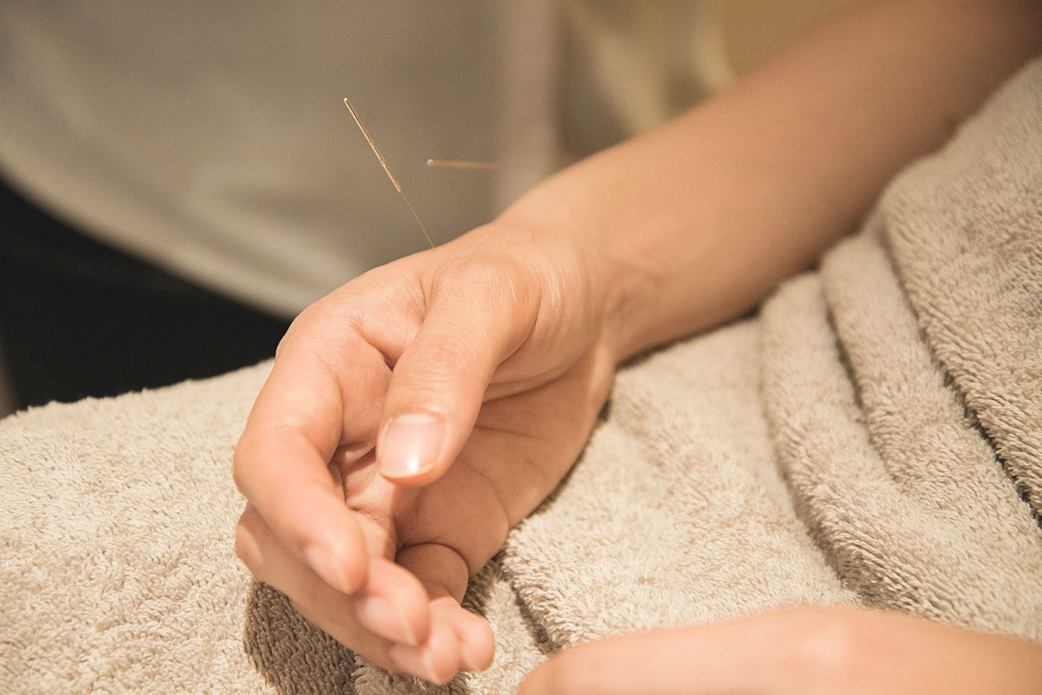 Mulberry House - hand with acupuncture needles