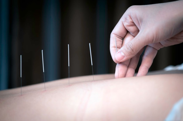 practitioner placing acupuncture needles to patients back